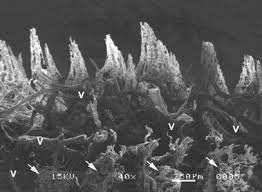 Really really really close up picture (from a scanning electron microscope) of the veins and arteries in a dog's paw