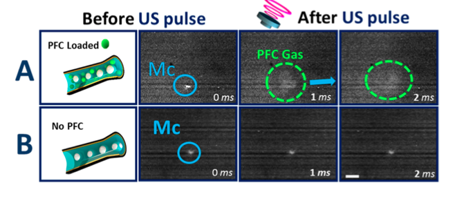 Before and after of the microcannons being pulsed with ultrasound waves, with and without perfluorocarbon (PFC) Photo Credit: Fernando Soto 2015